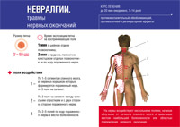 Симптомы межреберную невралгию в домашних условиях 127
